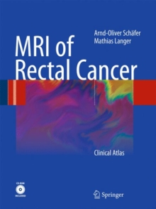 MRI of Rectal Cancer : Clinical Atlas, Mixed media product Book