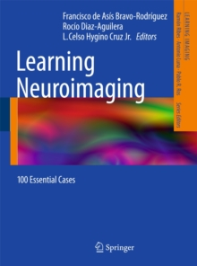 Learning Neuroimaging : 100 Essential Cases, Paperback Book