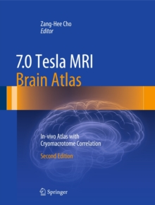 7.0 Tesla MRI Brain Atlas : In-Vivo Atlas with Cryomacrotome Correlation, Hardback Book