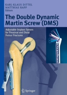 The Double Dynamic Martin Screw (DMS) : Adjustable Implant System for Proximal and Distal Femur Fractures, Hardback Book