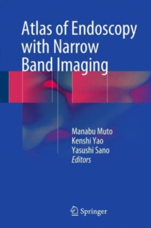 Atlas of Endoscopy with Narrow Band Imaging, Hardback Book