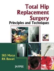 Total Hip Replacement Surgery : Principles and Techniques, Mixed media product Book