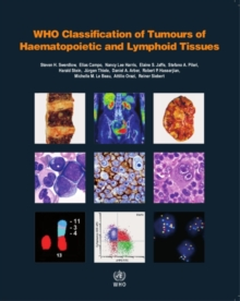 WHO classification of tumours of haematopoietic and lymphoid tissues : Vol. 2, Paperback Book