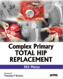 Complex Primary Total Hip Replacement, Hardback Book