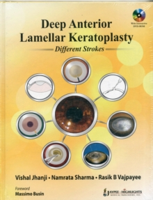 Deep Anterior Lamellar Keratoplasty Different Strokes, Mixed media product Book