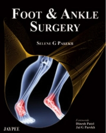 Foot and Ankle Surgery, Hardback Book
