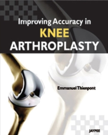 Improving Accuracy in Knee Arthroplasty, Hardback Book