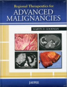 Regional Therapeutics for Advanced Malignancies, Hardback Book