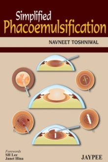Simplified Phacoemulsification, Paperback / softback Book