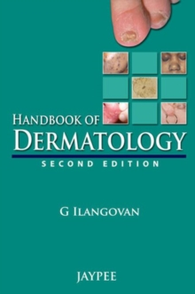 Handbook of Dermatology, Paperback / softback Book