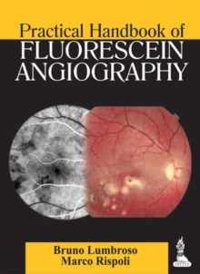 Practical Handbook of Fluorescein Angiography, Paperback / softback Book