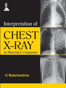 Interpretation of Chest X-Ray : An Illustrated Companion, Paperback / softback Book
