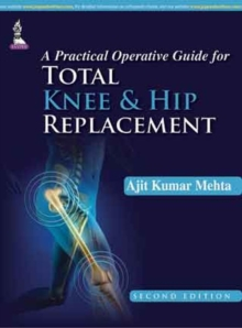 A Practical Operative Guide for Total Knee and Hip Replacement, Hardback Book