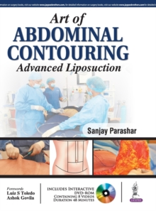 Art of Abdominal Contouring : Advanced Liposuction, Hardback Book