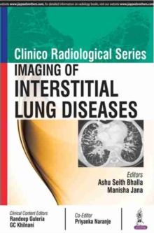 Clinico Radiological Series: Imaging of Interstitial Lung Diseases, Paperback / softback Book