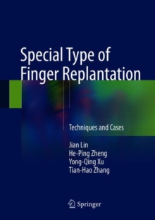 Special Type of Finger Replantation : Techniques and Cases, Hardback Book